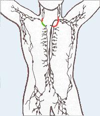 How do I deal with lymphatic drainage due to lymph node removal?