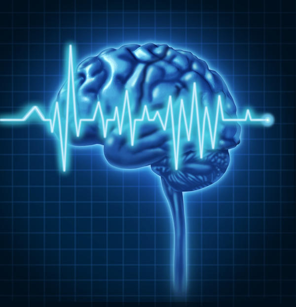What does a flat T-Line or T-Wave on an EEG mean?