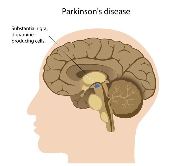 When does Parkinson's show up?