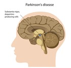 Parkinsonism Movement disorder