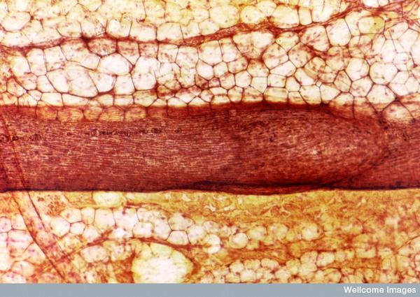 The nematode wuchereria lives in lymph capillaries in the human body. How does it get there?