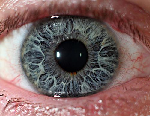 Black Eye Iris Color A red ring around my iris?