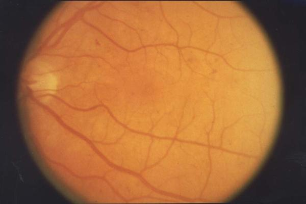 Can retinopathy cause one pupil being smaller than the other?
