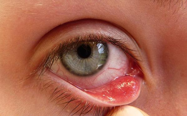 How does a chalazion differ from a stye?