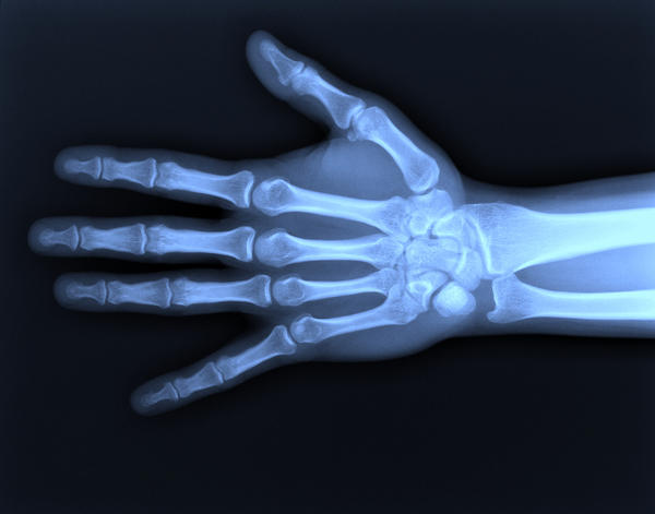 What are the signs that a fractured wrist is healing correctly?