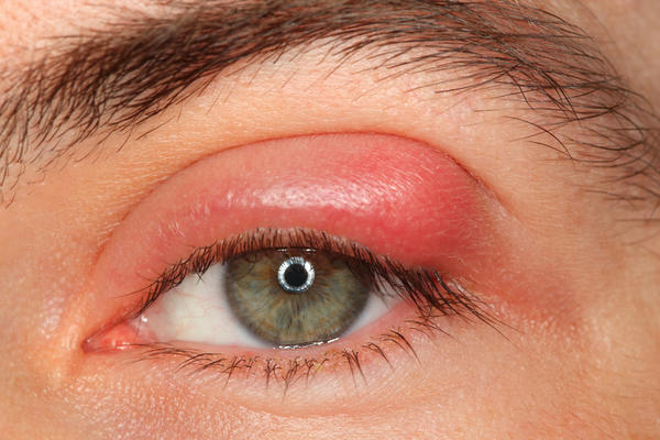 I keep getting diagnosed with different things,  but sometimes my eye itches really bad,  it becomes red and swollen,  then bumps with pus show up on my upper eye lid.  I was told at one time it was shingles but it happens at least 3 times a year,  anothe