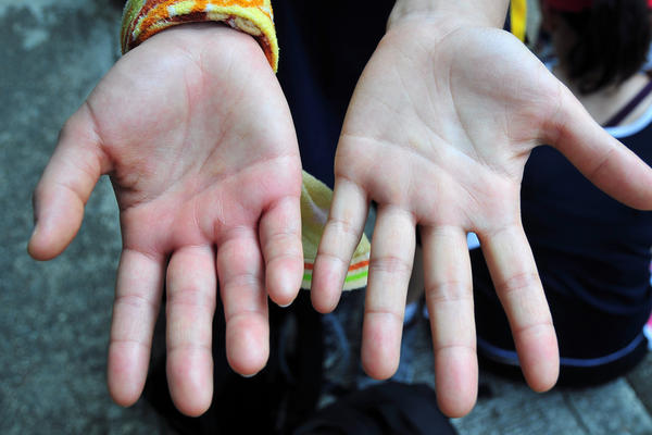 What causes hands and fingers to swell after being in the heat?