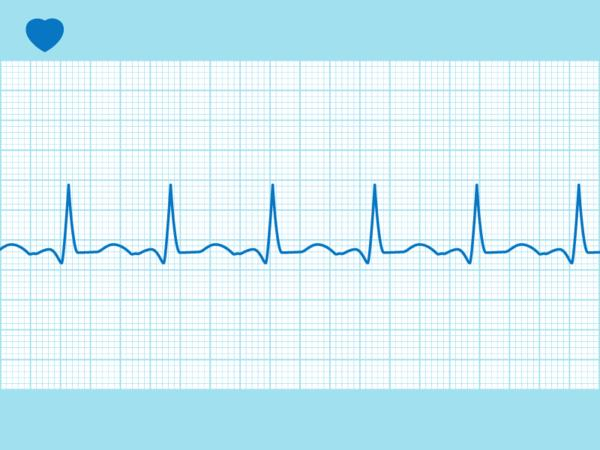 Is an EKG a definitive test for vascular damage for a patient with chest pain?