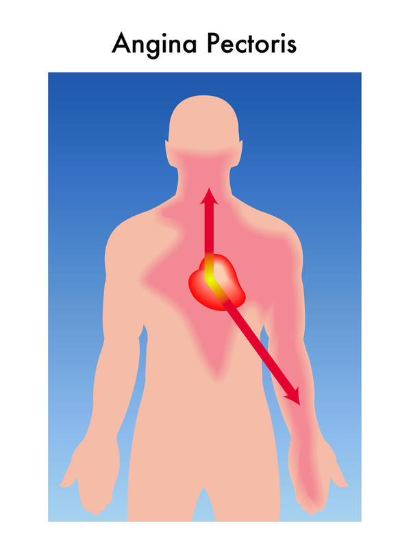 I suffer from COPD , angina.I keep getting pains on the left side of my chest.