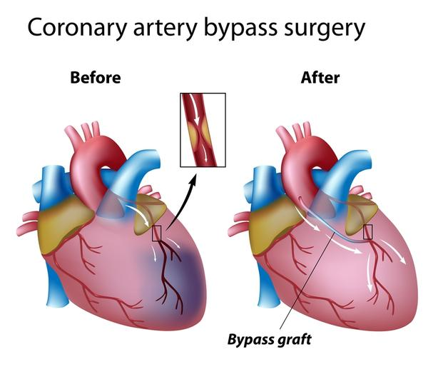 What happens to the bypassed artery and associated nerves after a bypass operation?