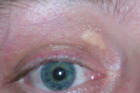 eye; xanthelasma Hypercholesterolemia Cholesterol test High cholesterol