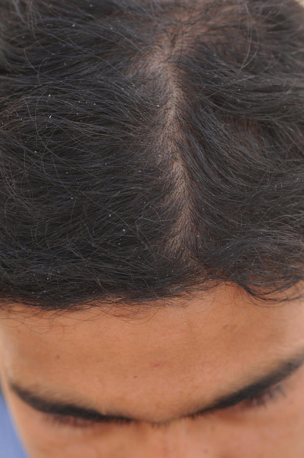 How do I get rid of these scab-like things on my scalp?