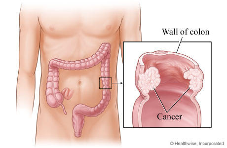 How does an iscreen fecal occult blood test detect colon cancer?
