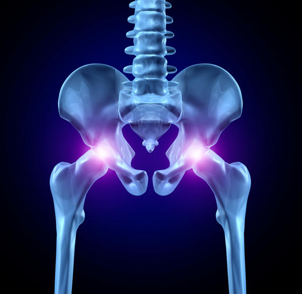 Is a burning sensation over outside of hip one of the symptoms of osteonecrosis of hip?