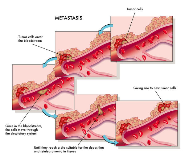 What does patchy sclerosis in both scapulae and left upper ribs are also keeping metastasis mean in layman's term?