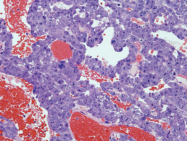Can malignant tumors that turn into metastasis kill you?