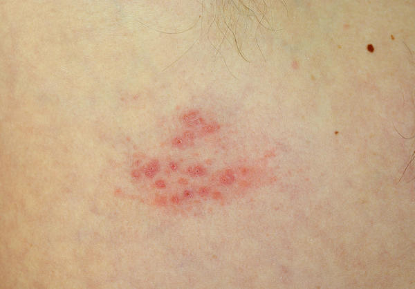 Red/purple spots on thigh, clustered closely together, covering large area, long streaks. Had very similar rash before several times over the years.?