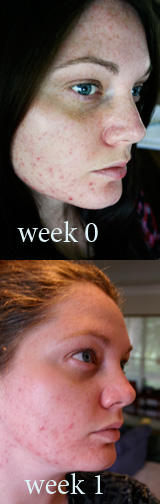 How to get rid of pimples on the face and back?
