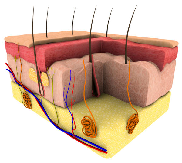 My wife loses a lot of hair?