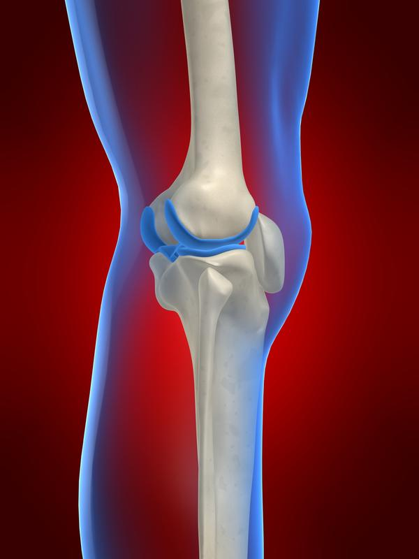 Does having a displacement of a meniscal root cause you to have pain behind the knee?