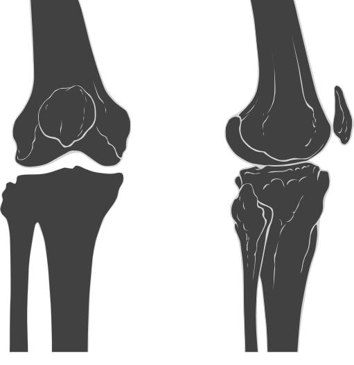 Does the knee cartilage show up in a x-ray?