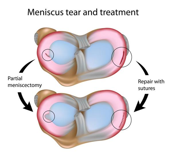 Are there any side effects from surgery to repair a torn meniscus?
