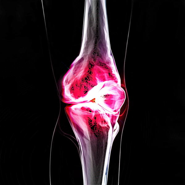 What are some physical therapy exercises for a torn meniscus?