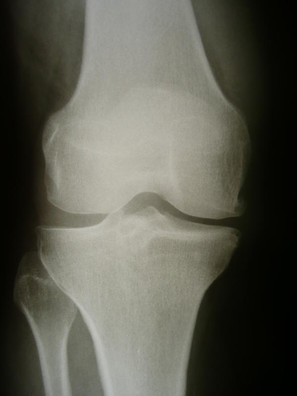 What is the main difference between osteoarthritis and degenerative joint disease?