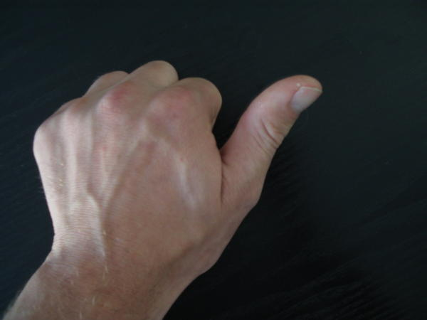 Is it ok to have physical therapy two weeks after a ulnar collateral tear of the thumb?
