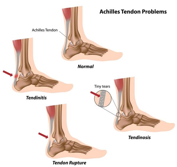What to do if I have a painful lump on my Achilles tendon does anyone know what it could be?