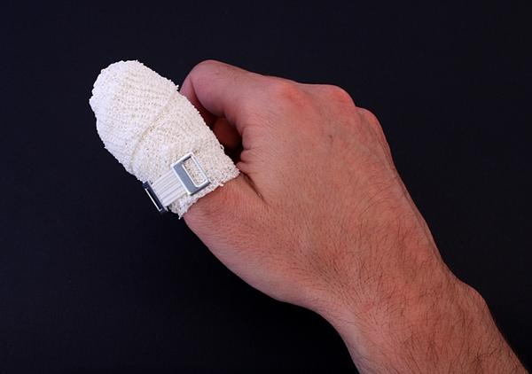 How can you tape a broken thumb?