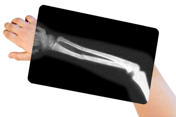 What are the different stages of healing in a bone fracture?