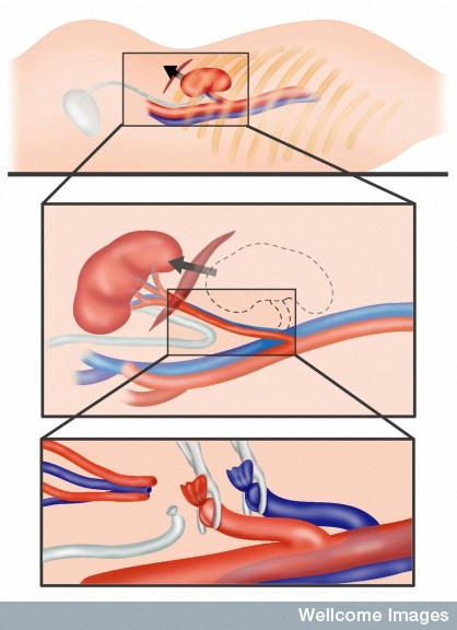 What causes hypertension after bilateral nephrectomy?