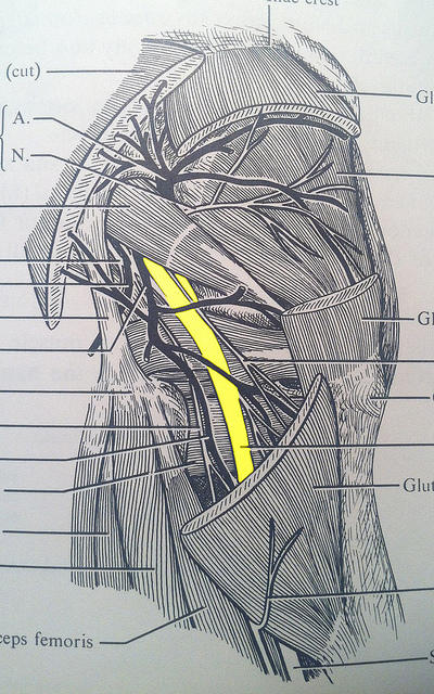 What causes imbalance in the periformis muscle?Where it is located?