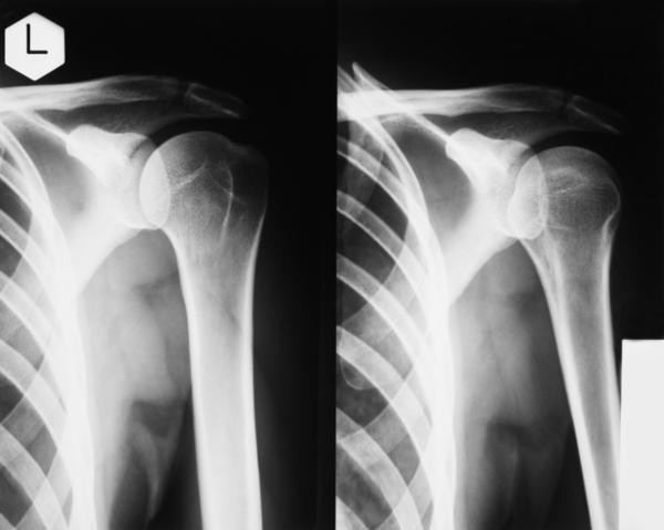 What exactly causes the stiffness in a rotator cuff injury?