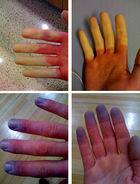 Raynauds_phenomenon