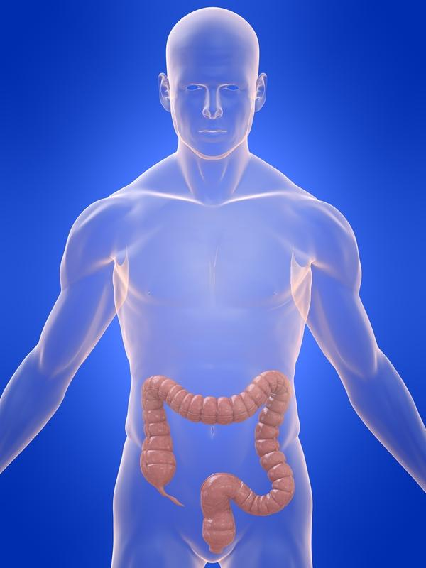 What causes diverticulosis?