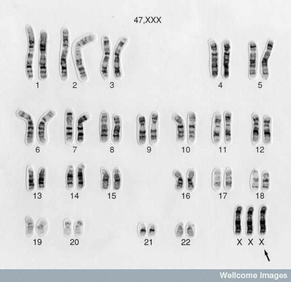 How is the genetic abnormality patau syndrome inherited?