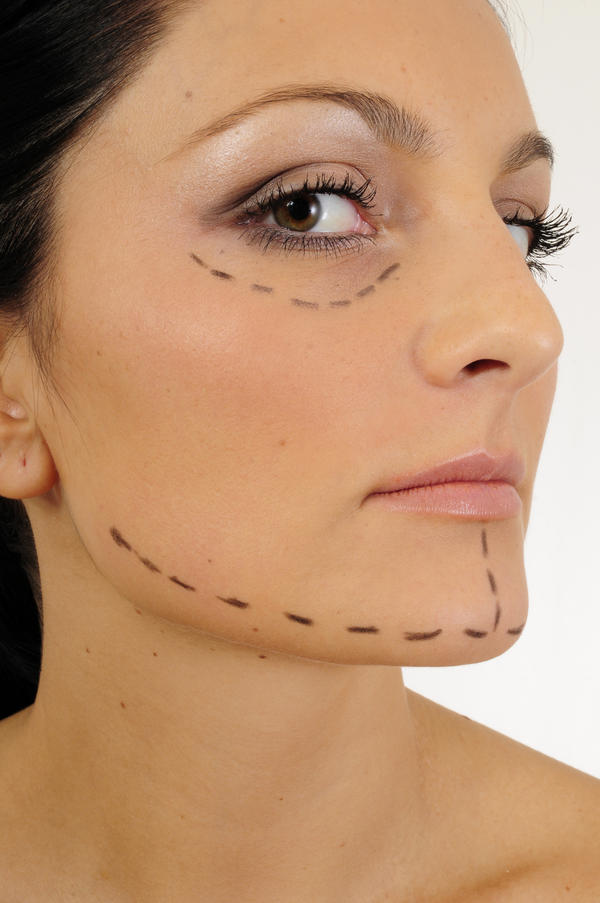 Need expert help here. What are the side effect of facelift surgery?