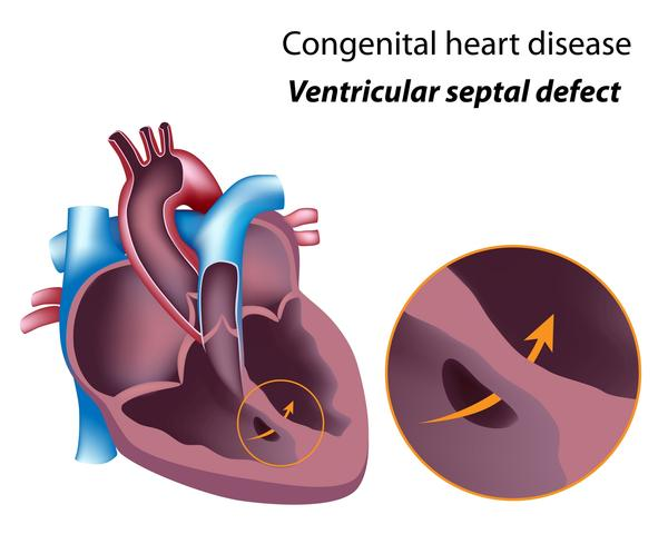 Do you need sugery for atrial septal defect caused by a congenital defect?