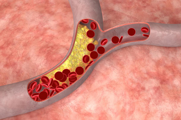 What happens if you take methyl 1-d with high cholesterol?