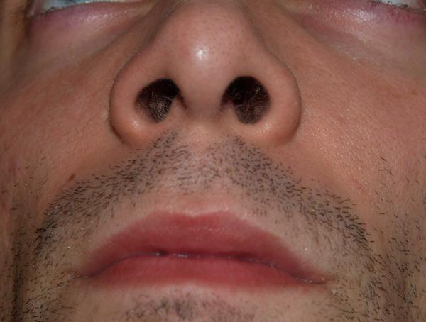 I have a small white hard lump in my right nostril?