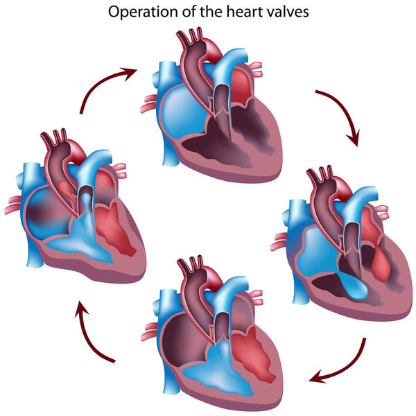How can one estimate the life expectancy for someone with aortic valve regurgitation?