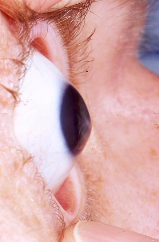 Are one of the late effects of hyperthryoidism bulging eyes?