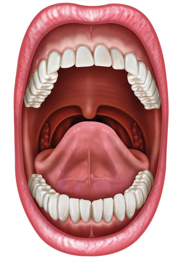 Could a sore jaw on the left side and ball - like mass that can be moved around underneath of it be connected to a large hole that formed on my tonsil?