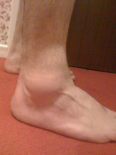 What exactly is the hard swelling around my sprained ankle?