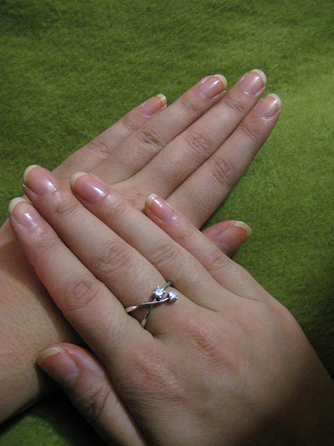 What causes rippled fingernails? And what is the appropriate treatment?