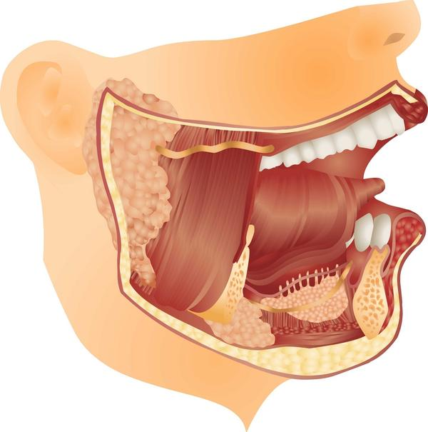 What would cause shrunken salivary glands?