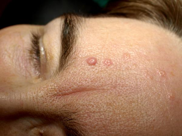 What are the symptoms of seborrheic dermatitis?