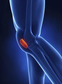 What is the treatment for a patellar retinaculum tear?
